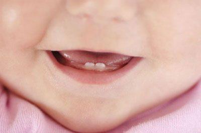 Durchfall Mit Schleim Und Blut Bei Kindern Ursachen Behandlung