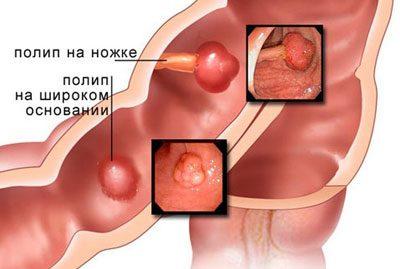 Durchfall Mit Blut Bei Erwachsenen Ursachen Behandlung